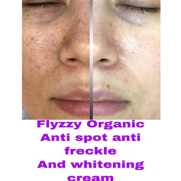 Photo by @flyzzyorganic786 on June 12, 2021. May be an image of one or more people and text that says 'Flyzzy Organic Anti spot anti freckle And whitening cream'.