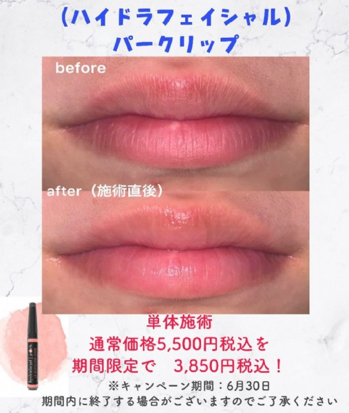 Photo shared by アクティブエイジング Active Aging 小松店 on June 19, 2021 tagging @hydrafacial.jp. May be an image of 1 person, cosmetics and text.