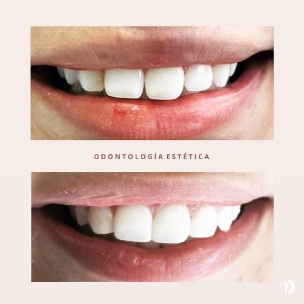Photo by Dra. Daniela Tejada Rojas on June 19, 2021. May be an image of text that says 'ODONTOLOGÍA ESTÉTICA'.